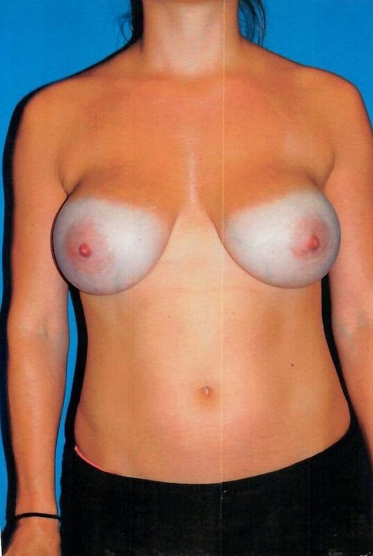 Breast Revision Before & After Image