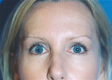 Brow Lifts Before & After Image